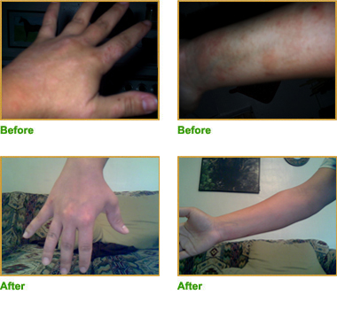 SerenaSkin Psoriasis Treatment Testimonials and Pictures 2